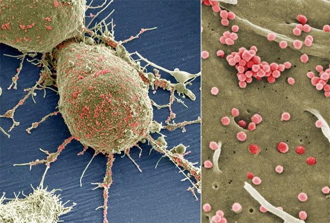 ویروس HIV-1 موجود در سطح سلول